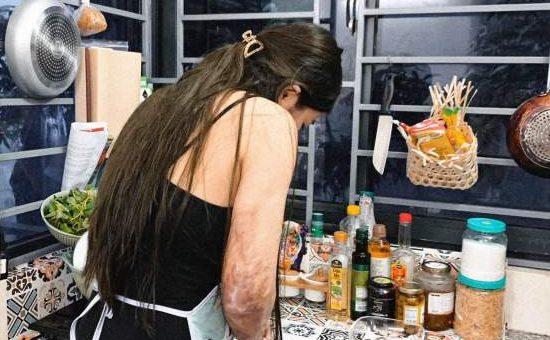 Đam mê bếp núc dù bị bỏng 68